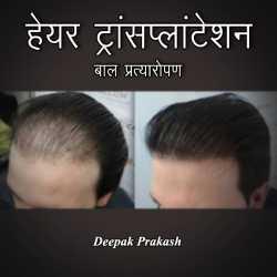 HAIR TRANSPLANTATION by deepak prakash in Hindi